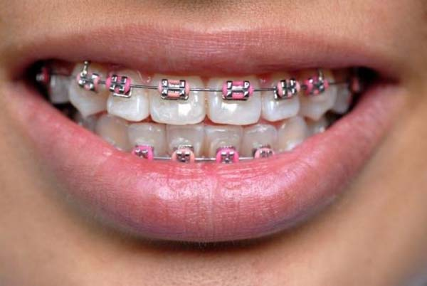 shutterstock-teen-braces