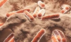 33573410 - bacteria, bacilli